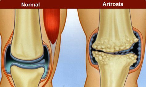 artroza malih sklepov hrbtenice